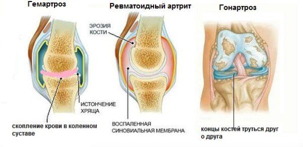 Отличия гонартроза, гемартроза и ревматоидного артрита