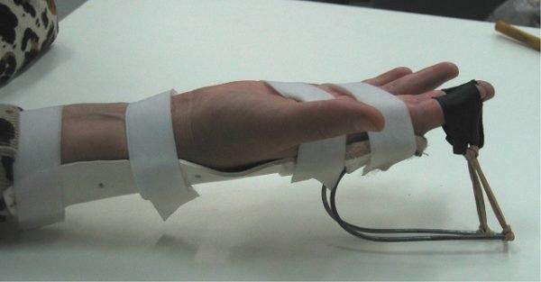 физиотерапия пальцев