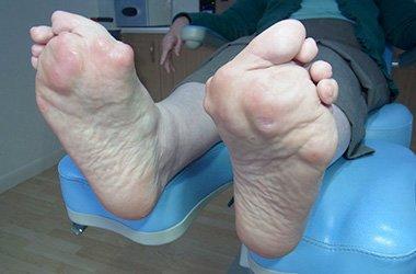 острый артрит стопы