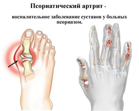 Патология на ноге