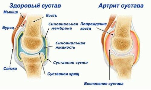 диагностирование заболевания плеча