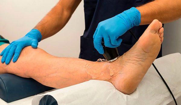 физиотерапия голени