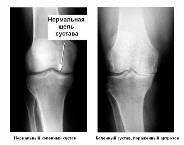рентген колена пораженного артрозом