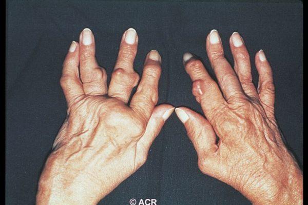 Пальцы деформированные