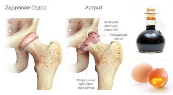 Польза куриного яйца при артрите