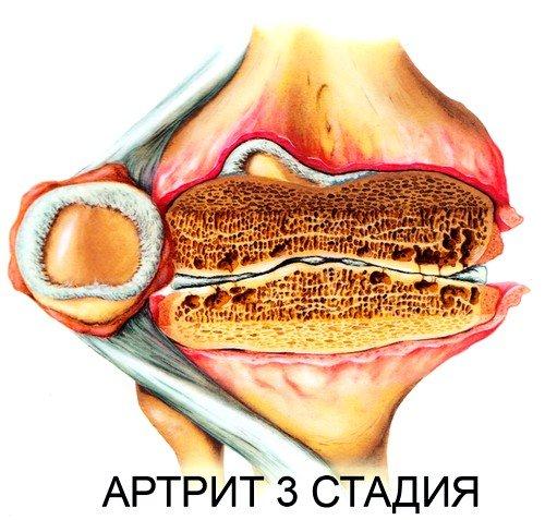 запущенная стадия недуга