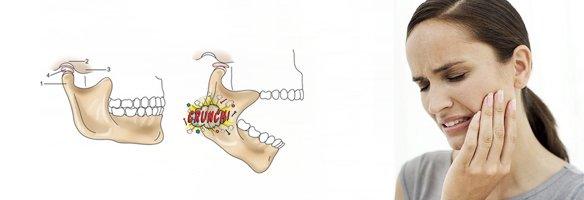 Физио челюсти