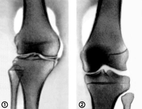 Юношеский артрит коленного сустава