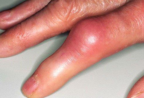 опухоль на пальце