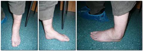 поврежденная нога