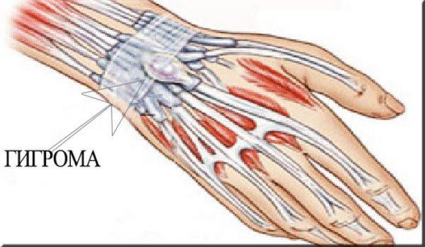 кости и мышцы руки