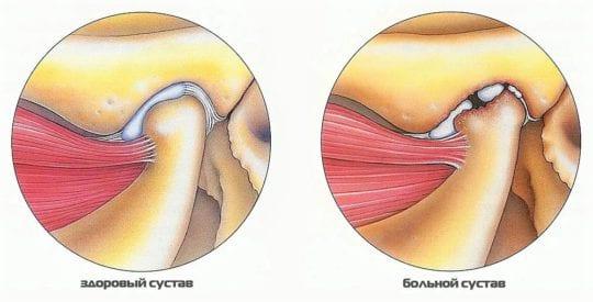 Височный артрит симптомы и лечение