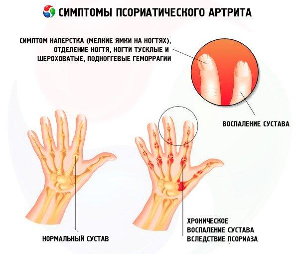 Изучаем симптомы