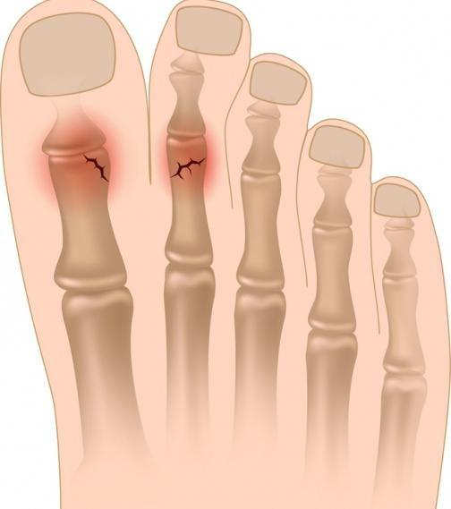 Суставы пальцев ног