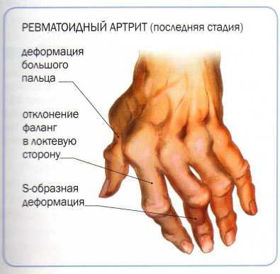 Артрит руки