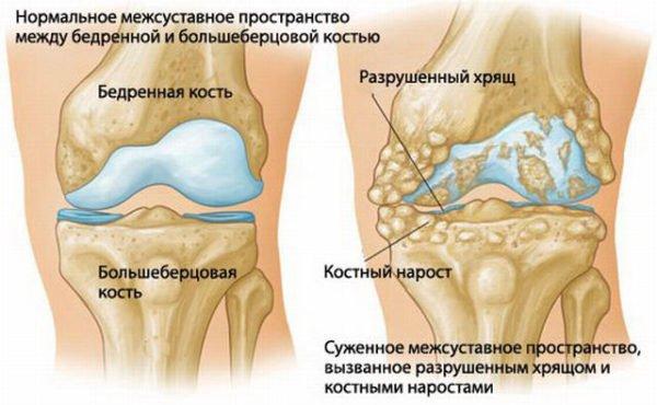 описание артрита