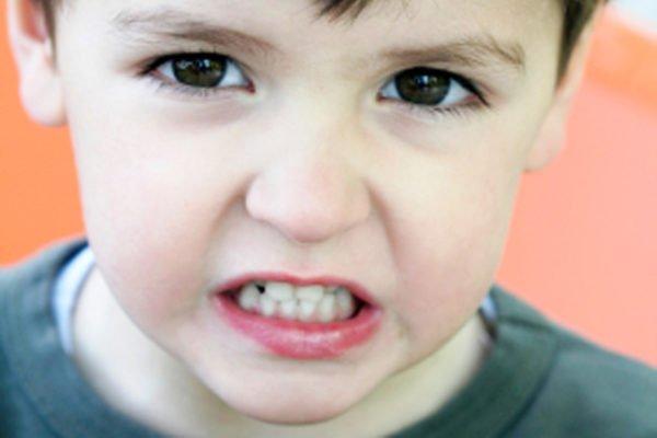 У детей проблемы с челюстью