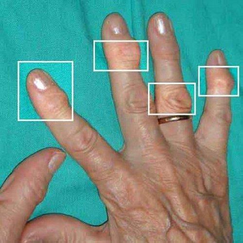 Как лечить артрит на пальцах фото