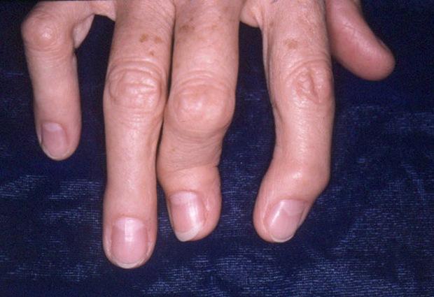 Скрюченные пальцы