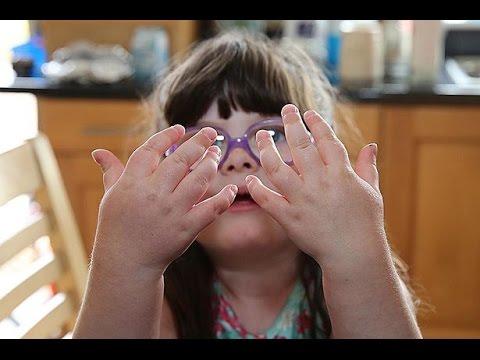 Девочка с болезнью рук