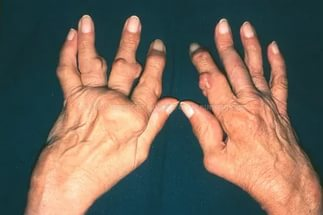 ревматоидный артрит на кисти рук