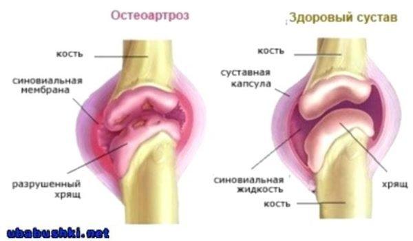 Причины деформации суставов
