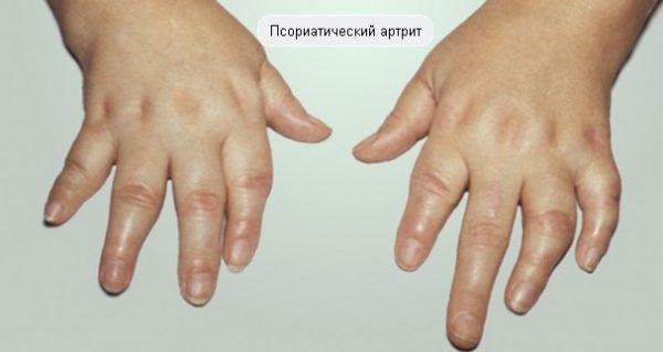 Псориатический артрит: причины, симптомы, диагностика и лечение