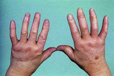 Деформация пальцев руки