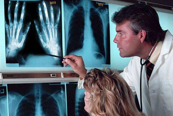Рентген болезни