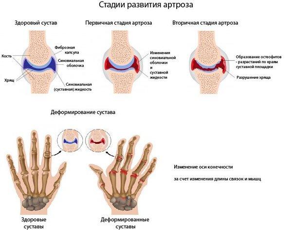 Повреждения суставов рук