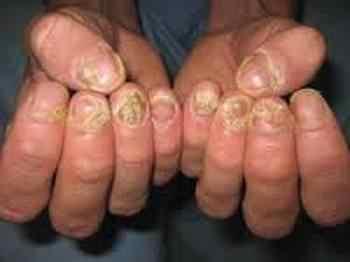 Дефекты ногтей