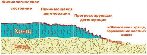 Изменение хрящевой ткани