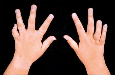 Свело пальчики
