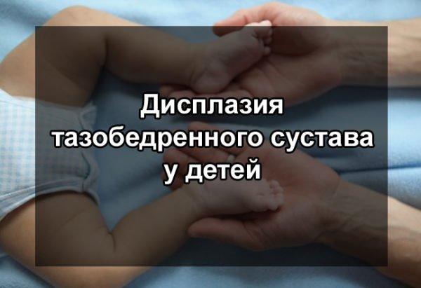 Дисплазия тазобедренных суставов у ребенка 1 год
