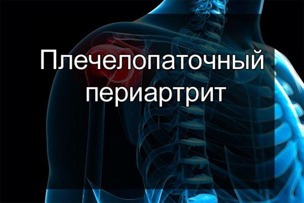 Плечелопаточный периартроз симптомы и лечение чем лечить плечевой сустав