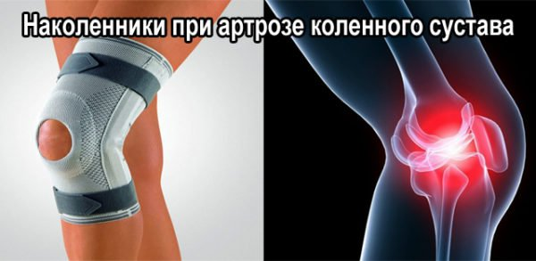 наколенник на колено