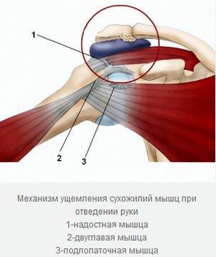 Подушечка в плечевом суставе