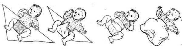 профилактика тазобедренной дисплазии у новорожденных