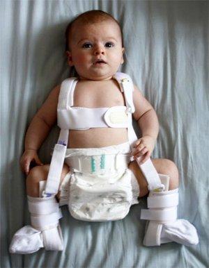 Изображение - Дисплазия тазобедренного сустава у детей после года 3-1