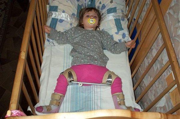 Лечение дисплазии тазобедренных суставов у детей шина виленского магнит жабка для коленного сустава