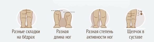 Изображение - Дисплазия тазобедренного сустава у детей после года symp