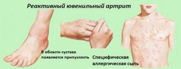 Ювенальный