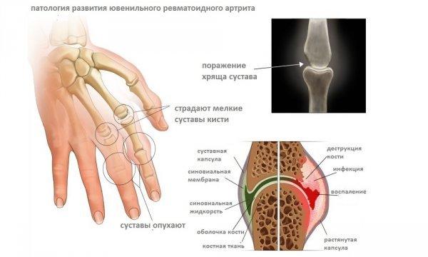 Симптомы поражения руки