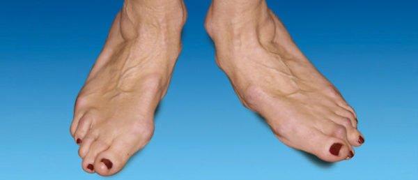 Артроз фалангов пальцев стопы