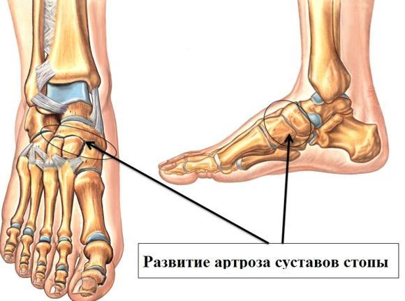 Остеохондроз стопы левого сустава рентген суставов качественно
