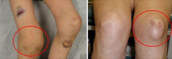 Изменение колена
