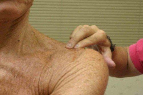 Опухшее плечо