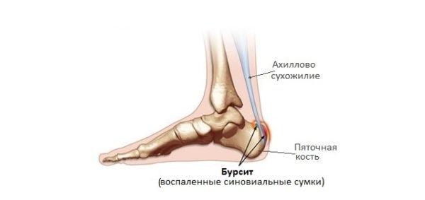 Наглядное представление ноги