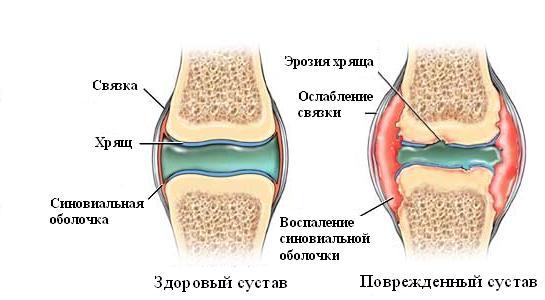 воспаление синовиальной оболочки сустава