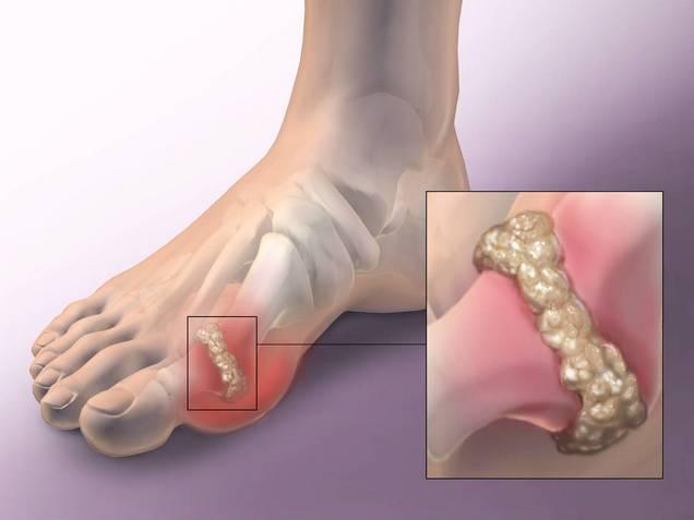 осложнения подагры на пальце ноги